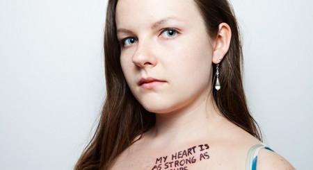 """""""I am not my transplant"""""""