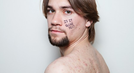 """""""I am not my scars"""""""